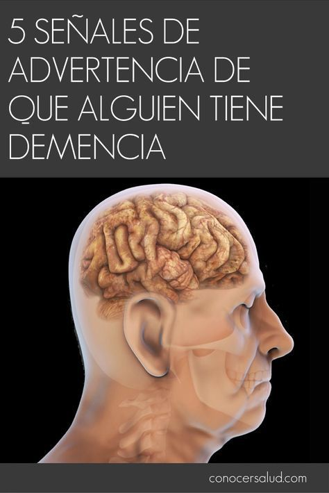5 Señales de advertencia de que alguien tiene demencia #salud