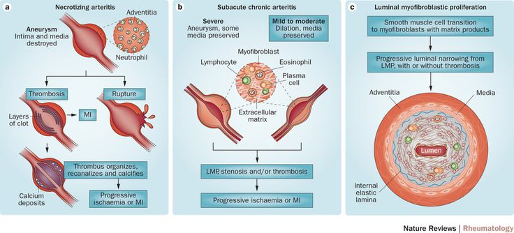 Erythema Multiforme, Stevens-Johnson Syndrome, and Toxic
