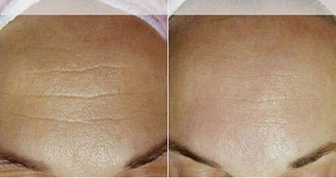 Cet anti-rides naturel est idéal pour la peau: elle égalise le teint, ralentit le vieillissement de la peau, réhydrate et diminue les rides.