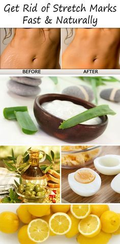 Here are TOP 10 ways to get rid of Stretch Marks fast and naturally. Re-pin worth!