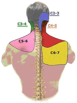 cervical facet referral pattern. Im getting 2 shots in my cervical spine facets to hopefully help get better. :)