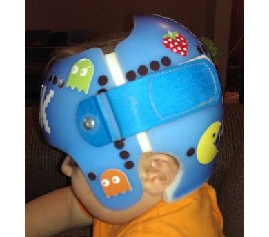 Best DOC Band Baby Images On Pinterest - Baby helmet decals