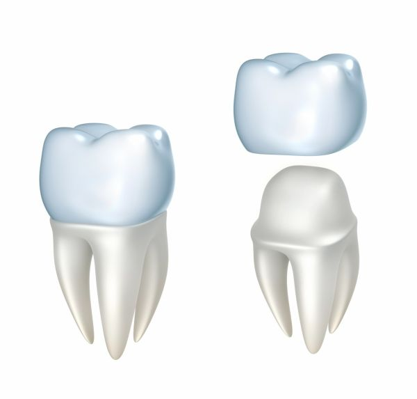 How Long do Dental Crowns Last? - The porcelain material used in dental crowns is...