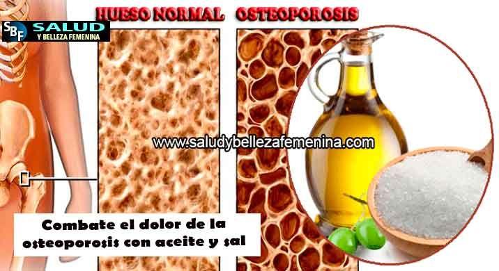 22++ Como aliviar el dolor de la osteoporosis viral