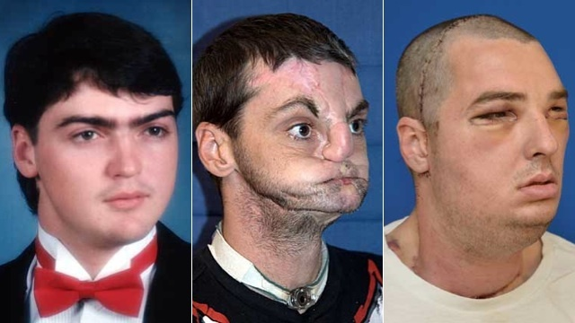 The most extensive face transplant gives a man a new jaw, teeth, tongue, muscle, tissue, bone and skin. Simply incredible.