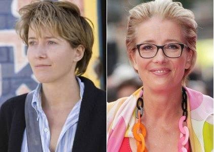Emma Thompson Plastic Surgery Before and After - https://www.celebsurgeries.com/emma-thompson-plastic-surgery/