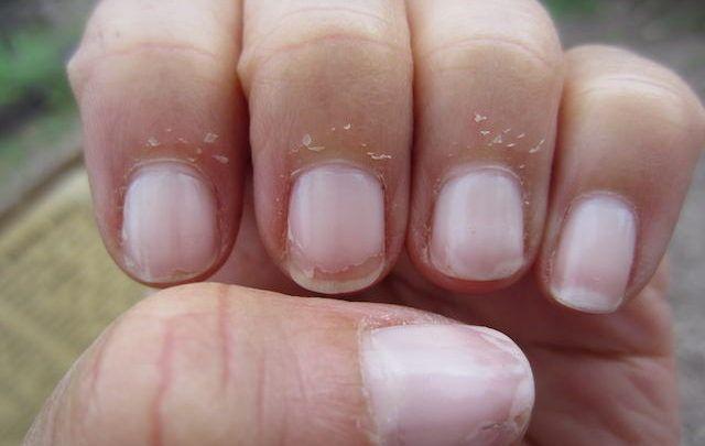 How to Stop Peeling Fingertips?