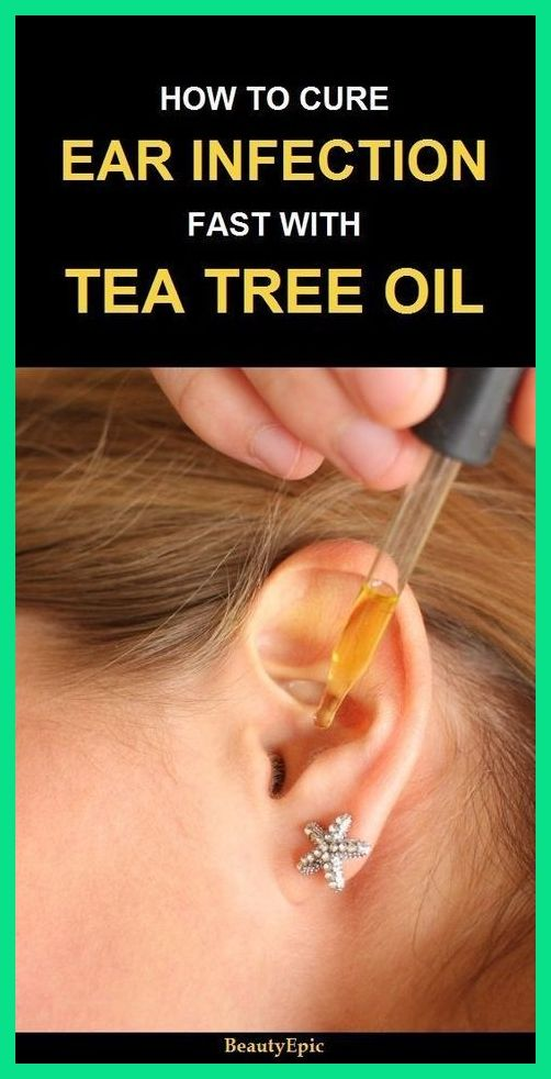 EAR INFECTION NATURAL REMEDY CURE