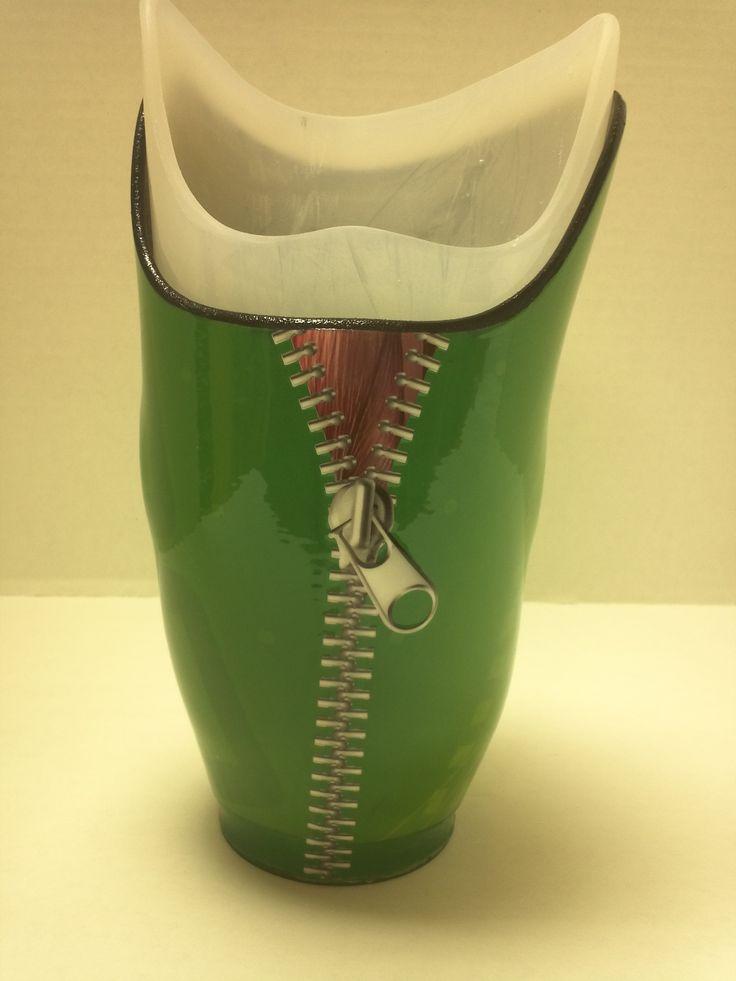 Caldwell Below Knee Prosthetics Socket (back)   Prosthetics   Pinterest   Inspiration