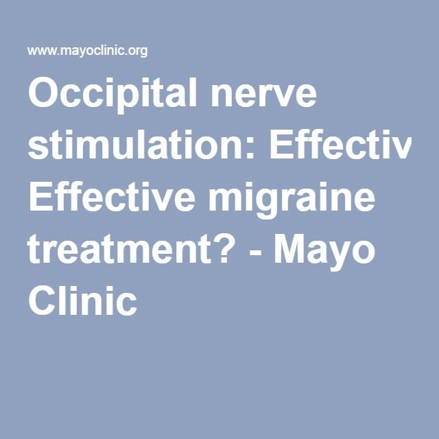 Occipital nerve stimulation: Effective migraine treatment? - Mayo Clinic