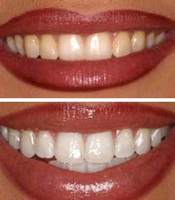 Evaluate your teeth whitening options, with information on bleaching risks, benefits, products, maintenance and the cost of teeth whitening