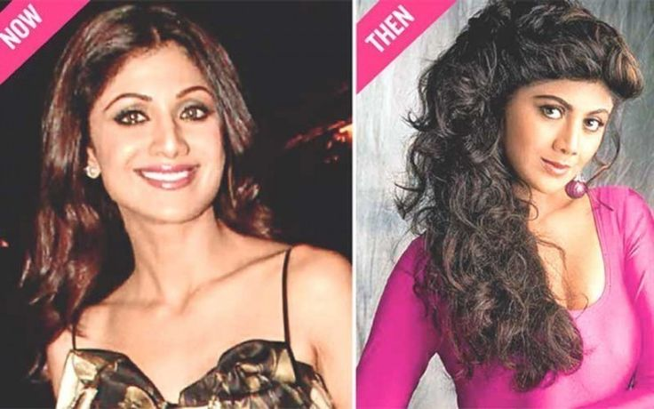 Shilpa Shetty Plastic Surgery Photo Now and Then