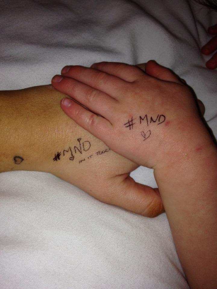 MND Q&A-Motor neuron disease treatment http://www.stemcellshealthcare.com/mnd-qa-motor-neuron-disease-treatment.html