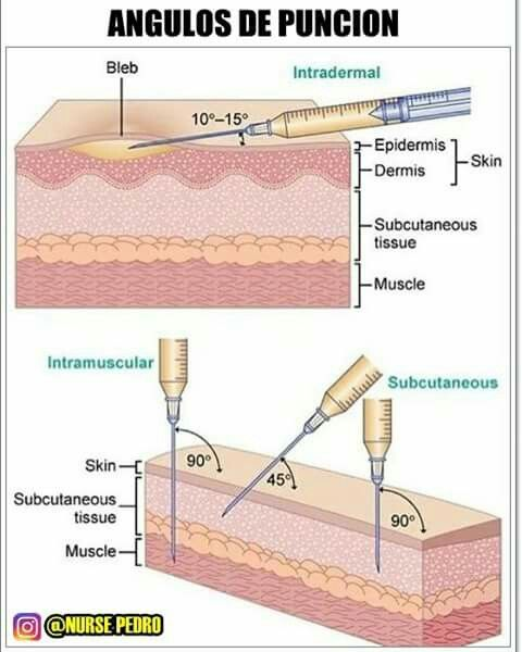 Buttock Injection Site: 43 Best Injection Sites Images On Pinterest