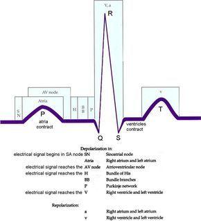 ECG breakdown