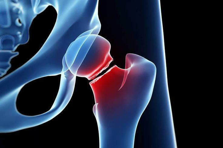 Como o osso quebrado se regenera?  Conheça as etapas de reparação do tecido ósseo após uma fratura