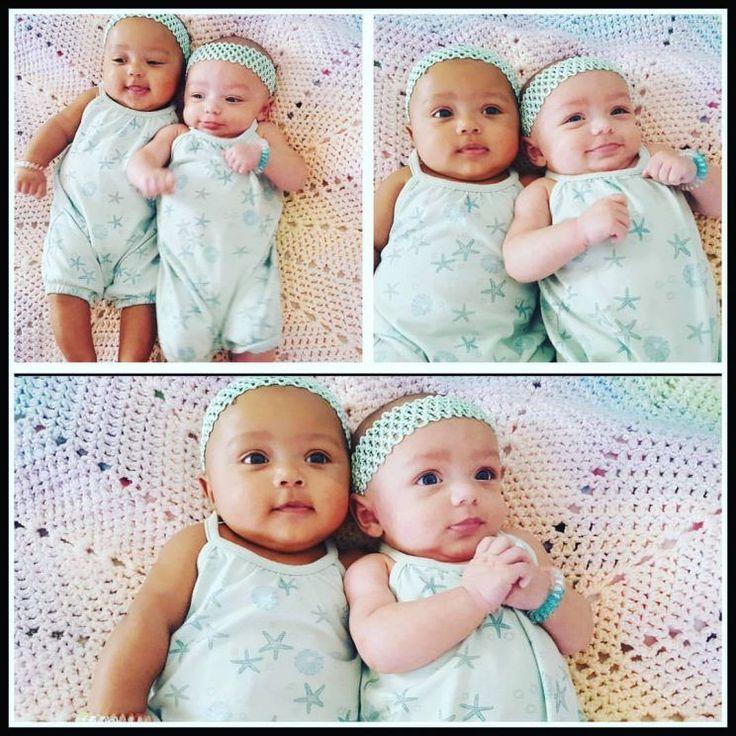 Todo mundo já sabe que gêmeos não precisam ser idênticos, mas esses estão provando que as diferenças podem ser para lá de encantadoras!