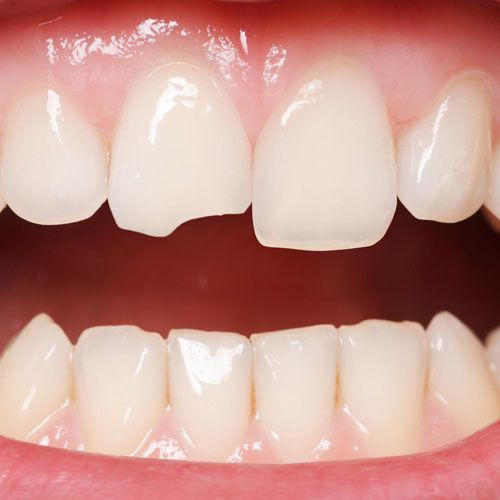 How Can Chipped Teeth Be Treated?
