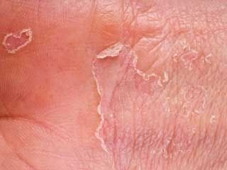 15 Simple but Effective Tips to Avoid the Outbreaks of Dyshidrotic Eczema