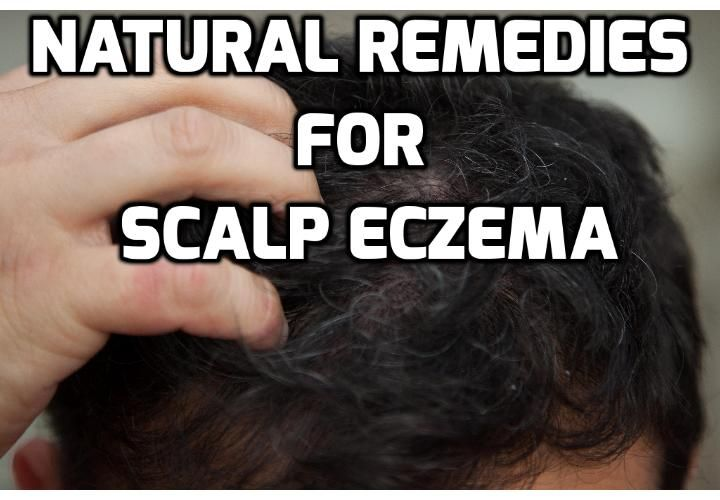 Discover Effective Scalp Eczema Treatment Straight From Your Pantry  Scalp eczema is not only embarrassing; this condition is also extremely uncomfortable and frustrating. When left untreated…