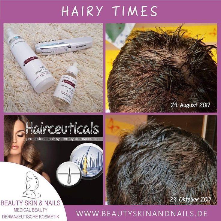 💎💥Vielfach gewünscht und sehr oft hält es nicht das was es verspricht 💎💥 Auch wir stehen neuen Produkten äußerst skeptisch gegenüber und bevor wir von etwas überzeugt sind und unseren Kundinnen und Kunden anbieten müssen wir uns selbst davon überzeugen ❣❣ 🦋Die Gründe für Haarausfall oder schütter werdendes Haar sind vielfältig. Sie gehören in jedem Fall immer in professionelle Hände. Die Faktoren sind unterschiedlich und selbstverständlich spielen Stress, die Menopause, uvm
