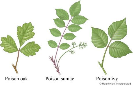 Poison ivy, oak, and sumac leaves - no wonder I'm covered in a rash... never knew what the sumac looked like!  Great... we have all three in our yard....