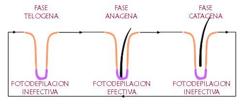 ¿Laser o Luz Pulsada IPL? Diferencias entre depilacion Láser e IPL