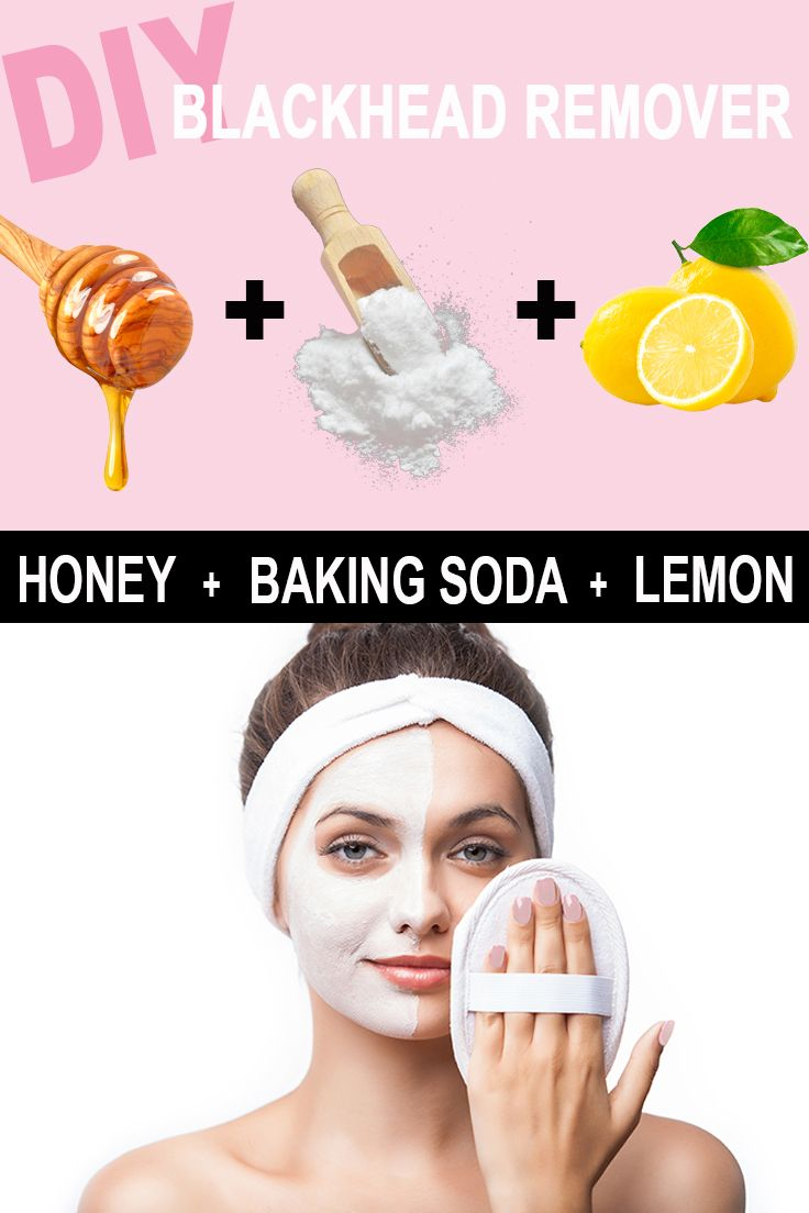 Diy: The Best Home Remedy To Rid Blackheads