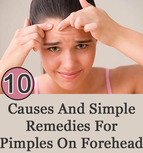 how to get rid of forehead hair