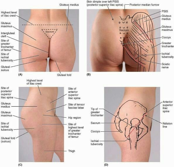 surface anatomy gluteal region的圖片搜尋結果