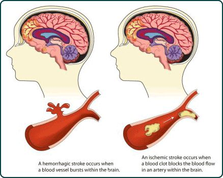 An illustration showing how a blood vessel can burst within the brain causing a hemorrhagic stroke, and how a blood clot within an artery of the brain can cause an ischemic stroke.