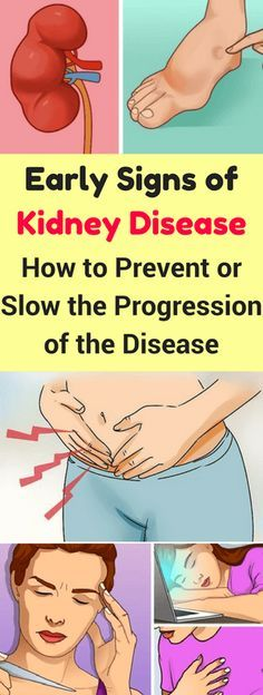 Early Signs Of Kidney, Disease-Also, How To Prevent Or Slow The Progression, Of The Disease!!!! - All What You Need Is Here
