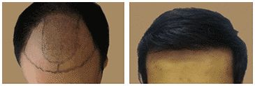 FUE Hair Transplant Cost