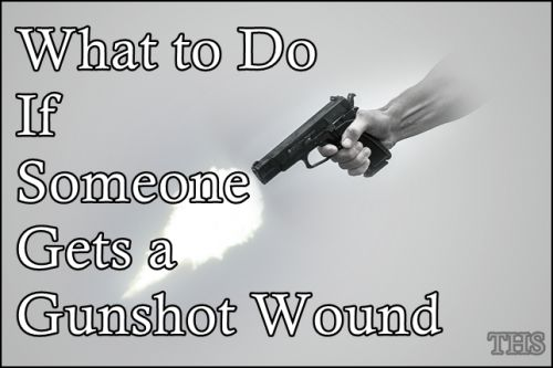 "What to Do If Someone Gets Gunshot Wound Homesteading  - The Homestead Survival .Com     ""Please Share This Pin"""