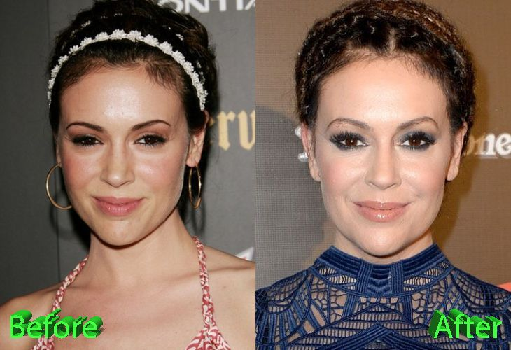 Alyssa Milano Plastic Surgery And What Do You Think Of It