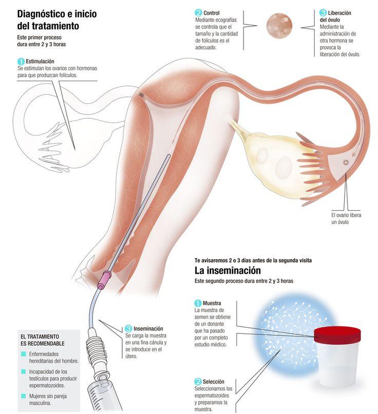 Ya sea con semen de la pareja o con semen de donante, una inseminación artificial consiste en introducir espermatozoides de una muestra en el útero