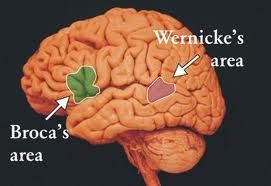 This is a picture as to where the Wernicke's Area of the brain is located.