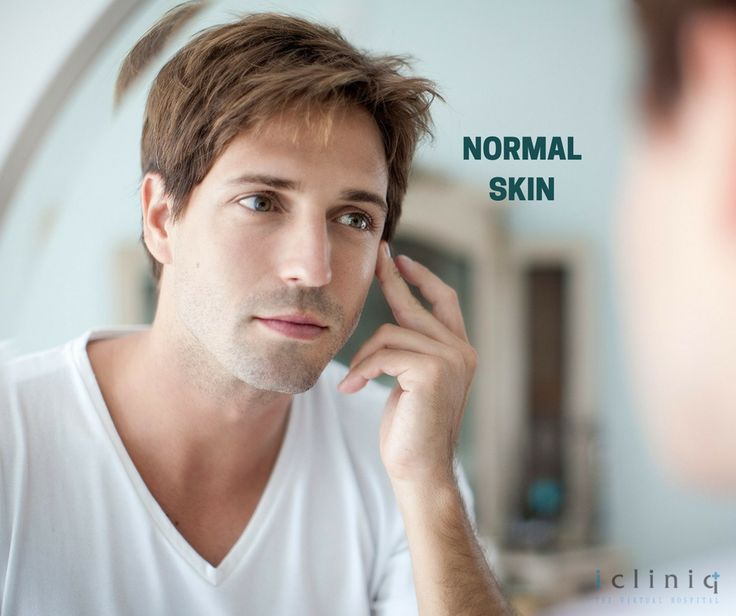 Normal Skin  You are one of the select few, who have been blessed when it comes to skin type. Use light water-based moisturizers to maintain your skin.  #skinlightening #melasma #skin #skincare #clearskin #coolaser #bluelight #transformation #makeover #magic #blessed #nofilter #nosugery