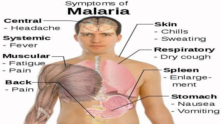 Symptoms of Malaria