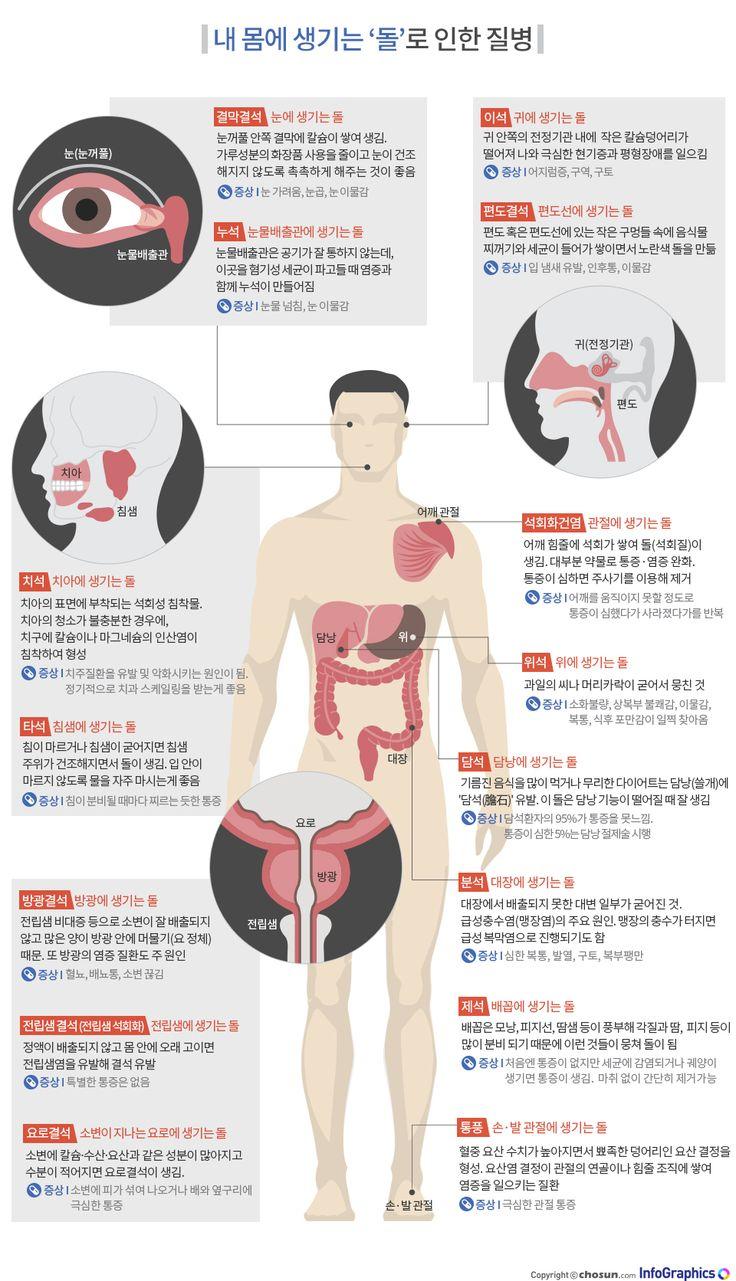 내 몸에 생기는 '돌'로 인한 질병 - 조선닷컴 인포그래픽스 - 인터랙티브 > 라이프