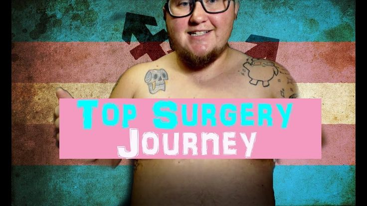 BYE BYE TATAS[Top Surgery Vlog][One week post-op]Here is something I know you guys have been waiting for. This was me documenting my time leading up to surgery and how I've been one week post op. I plan on keeping a regular update on this. Especially for the next month or so. After that updates will probably be more spread apart. Also there is a reveal of how my chest looks one week post op. #transgender #ftm #topsurgery #recovery #ftmsurgery #transsurgery #byebyetatas #transman…