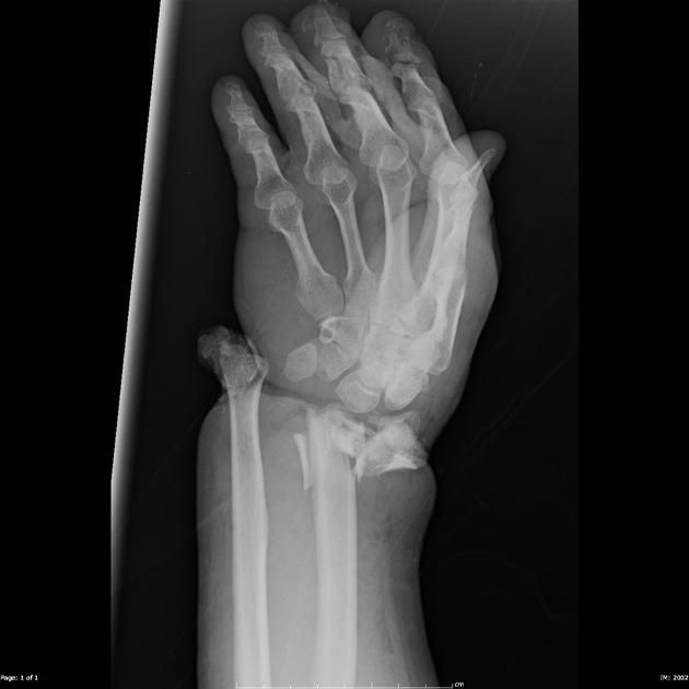 Fracture dislocation of the wrist is present with the distal ulna protruding though the skin.