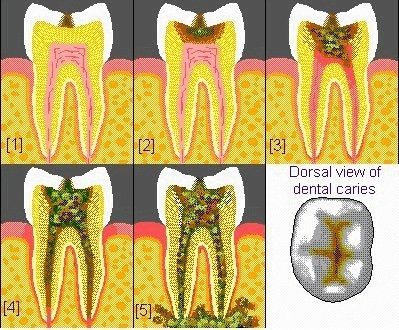 Different Stages of tooth decay.   Dentaltown - Patient Education Ideas