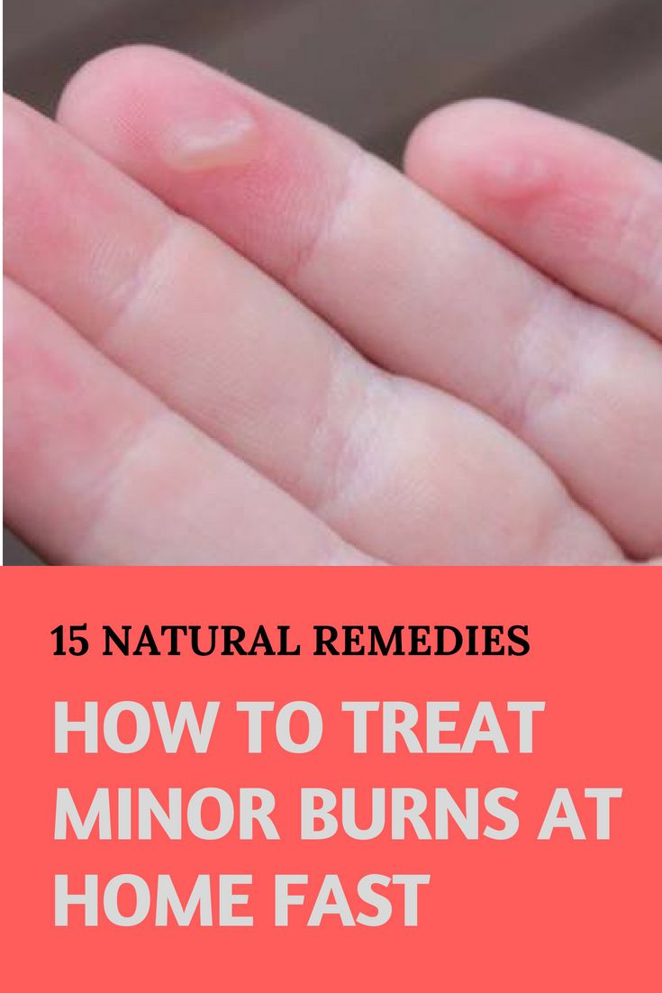 Home Remedies For Burns What Do You Put On A Minor Burn Burn Skin Home Remedies Home Remedies For Burns Burn Remedy