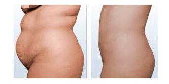 Muchas personas cuando suben de peso suelen acumular grasa en la zona abdominal y aunque hagan ejercicios, se alimenten saludablemente no la pueden baja debido a que es muy difícil lograrlo. Es una grasa muy rebelde. Puede pasarte de haber dejado el azúcar, hacer ejercicios, alejarte de las comidas chatarras, ingerir batidos y jugos para aplanar el vientre y no logras tonificar el abdomen, te