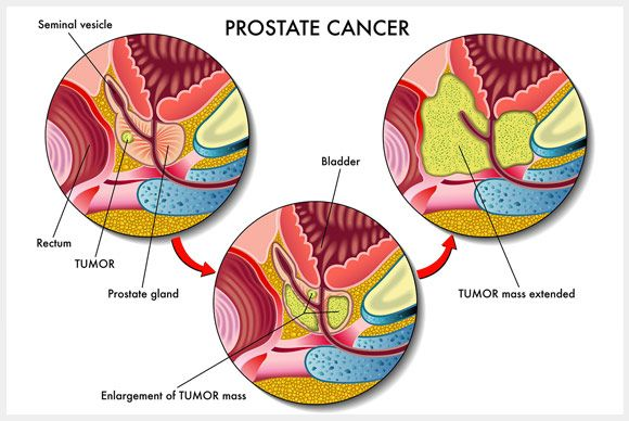Is Prostate Cancer Screening right for you?!  Prostate cancer is one of the most common malignancies in older male. Starting at age 50, discuss the pros and cons of prostate cancer screening tests with your physician. Prostate cancer screening is being offered by your urologist as an effective tool for detecting the cancer.  #prostate #prostatecancer #prostatecancerscreening #prostatecancerawareness http://www.drelist.com/prostate-cancer-screening