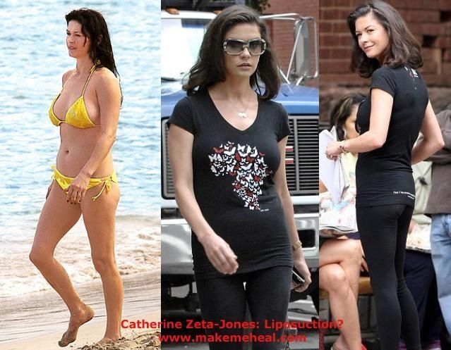 #Catherine #Celebrity #Jones #Liposuction #Plastic