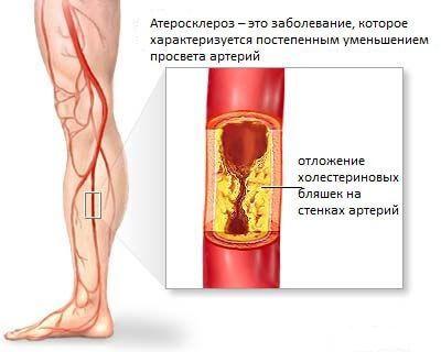Атеросклероз сосудов ног: тревожные симптомы