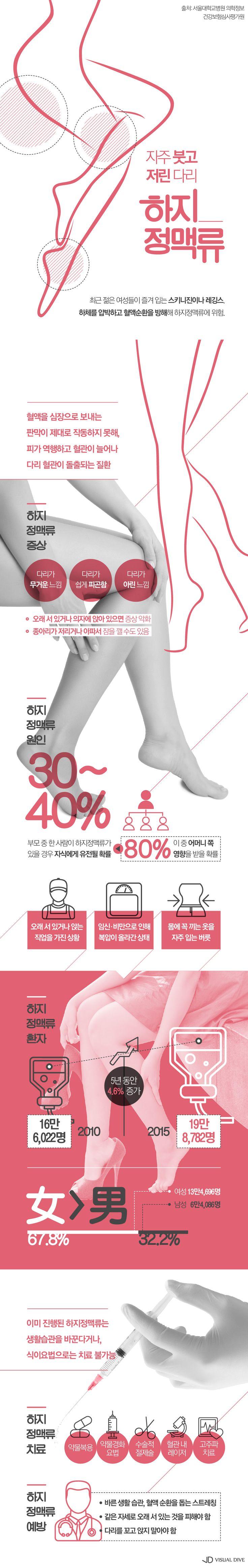 스키니진, 레깅스 자주 입는 여성, '하지정맥류' 위험 [인포그래픽] #varicose_vein / #Infographic ⓒ 비주얼다이브 무단 복사·전재·재배포 금지