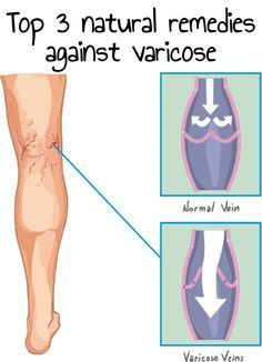 Varicose is a very unaesthetic problem, common especially for women. Before to take medication or go to surgery, see 3 Natural Remedies Against Varicose!